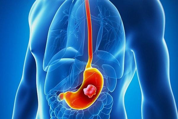 علائم سرطان معده ، چقدر این بیماری را میشناسید؟