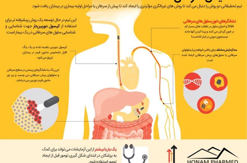 اینفوگرافیک| روشهای نوین تشخیص سرطان معده