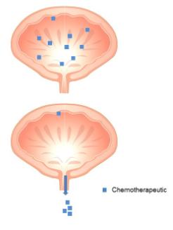 شیمی درمانی معمولی در سرطان مثانه