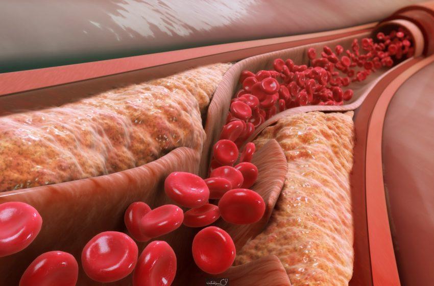دریافت بودجهای برای ساخت داروی جدید ضد کلسترول