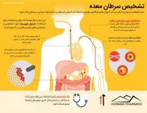 تشخیص سرطان معده